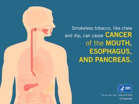 smokeless-health-effects