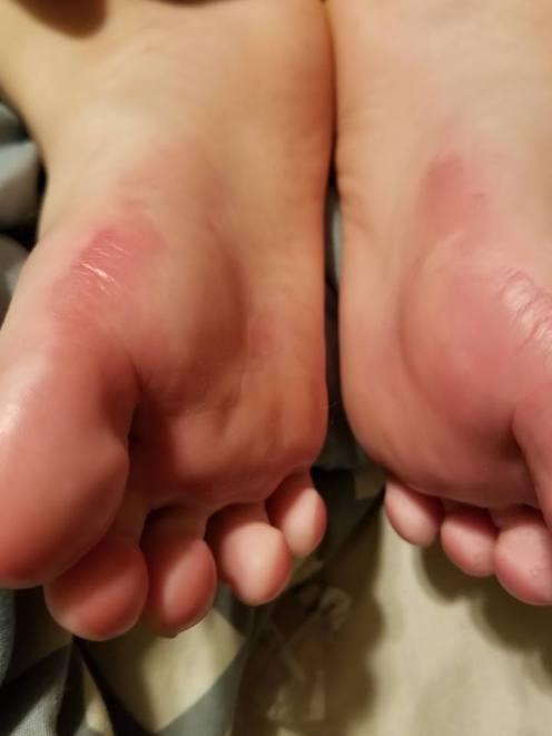 sketchers light up shoe warning burned foot2