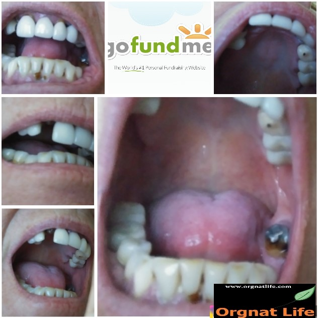 Dental care for woman / adults who can't afford treatment.